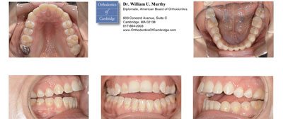 Before photo of patients of Dr. Murthy